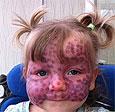 Огромное фиолетовое пятно сосудов на лице двухлетней девочки лечат лазером