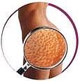 Борьба с целлюлитом: советы эксперта