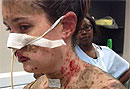 Аллергия на лекарства от эпилепсии выжгла кожу изнутри