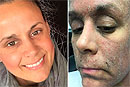 Женщина «превратилась в зомби» из-за крема для кожи